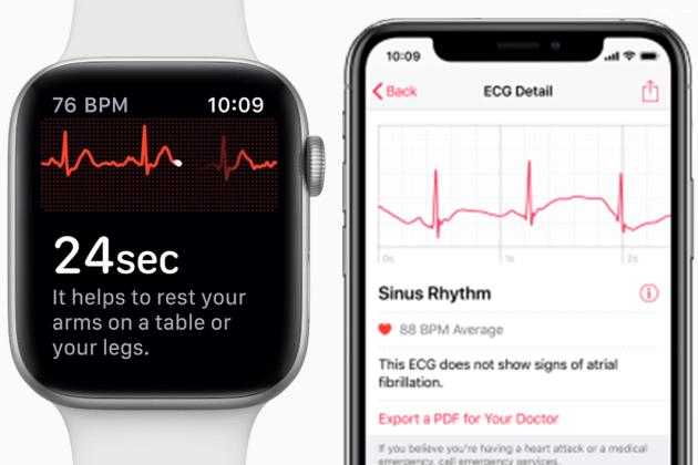 EKG اپل واچ